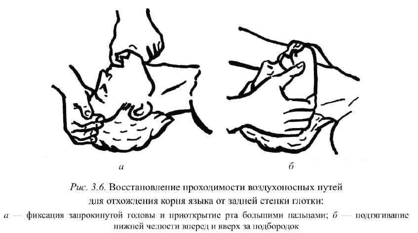 Правильное размыкание челюстей, правила первой помощи при поражении